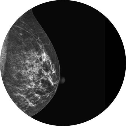 Digital Mammography Image