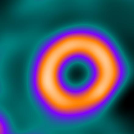 Nuclear Medicine Image