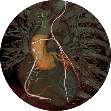 Chest Imaging Image